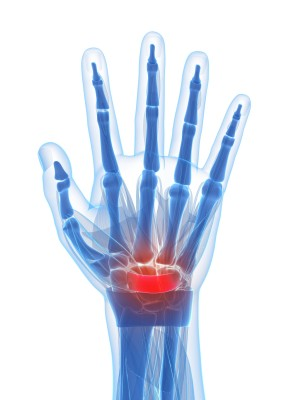 What Causes Carpal Tunnel Syndrome | Dr  Thomas Cohn