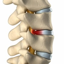 Spinal disc