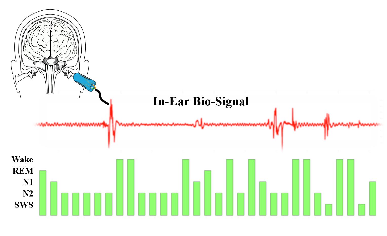 hight resolution of libs sleep staging