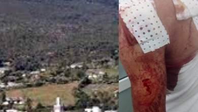 اعتداء وحشي على مواطن بدار الشاوي والدرك يعتقل الجاني 3