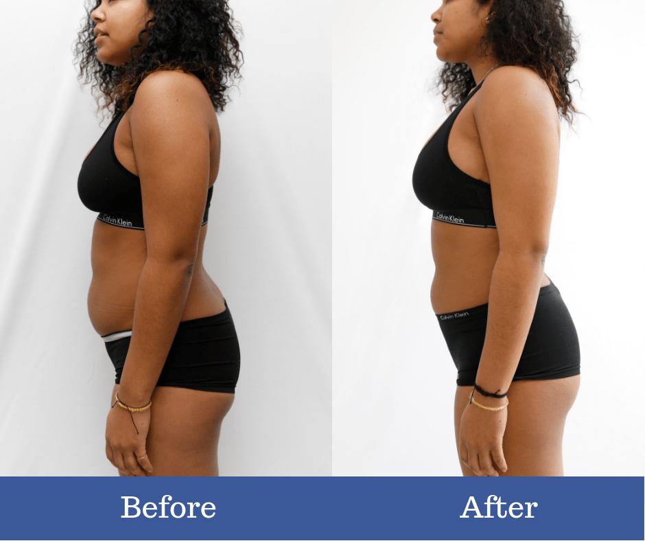 cost cryo slimming corpul de pierdere în greutate nu absorbi substanțele nutritive