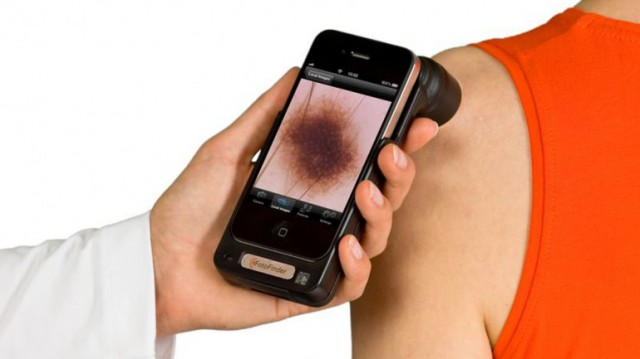 handyscope-640x359 Dermatologists may soon be scanning your freckles with iPhones