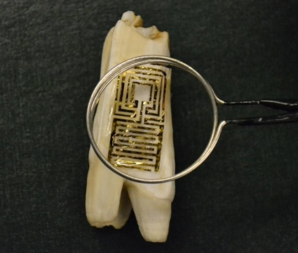 graphene-tooth-sensor-640x545 How About Futuristic Teeth With Wireless Decay Sensors?