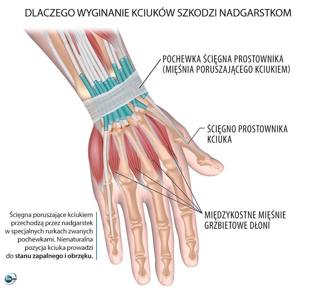 Dlaczego wyginanie kciuków szkodzi nadgarstkom?