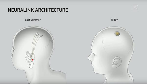 Musk przedstawił V2 – robota do chirurgii interfejsu mózg-maszyna