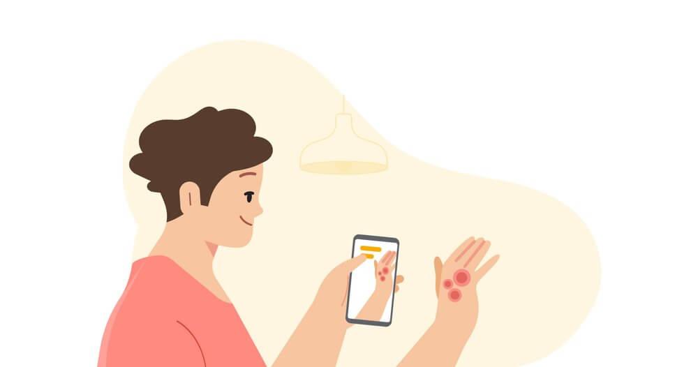 Rozpoznawanie chorób skóry smartfonem