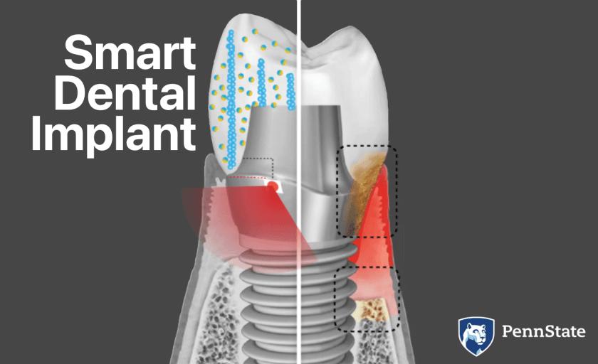 Smart Dental Implant (Penn State)