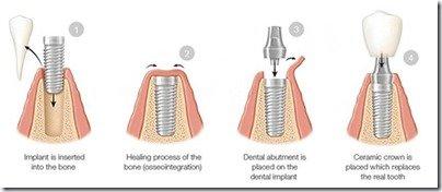 dental-implants-massachusetts-nh