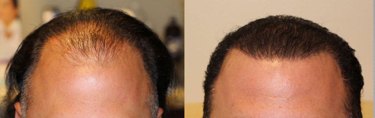 fue hair transplant orange county