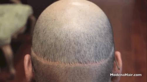 hair transplant repair orange county