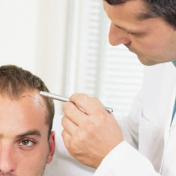 hair transplant orange county