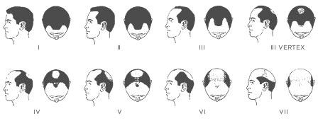 male hair loss chart