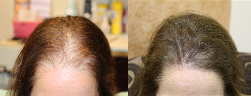 Female-Hair_Transplant_Resu