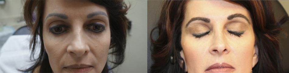 eyebrow_transplant_2