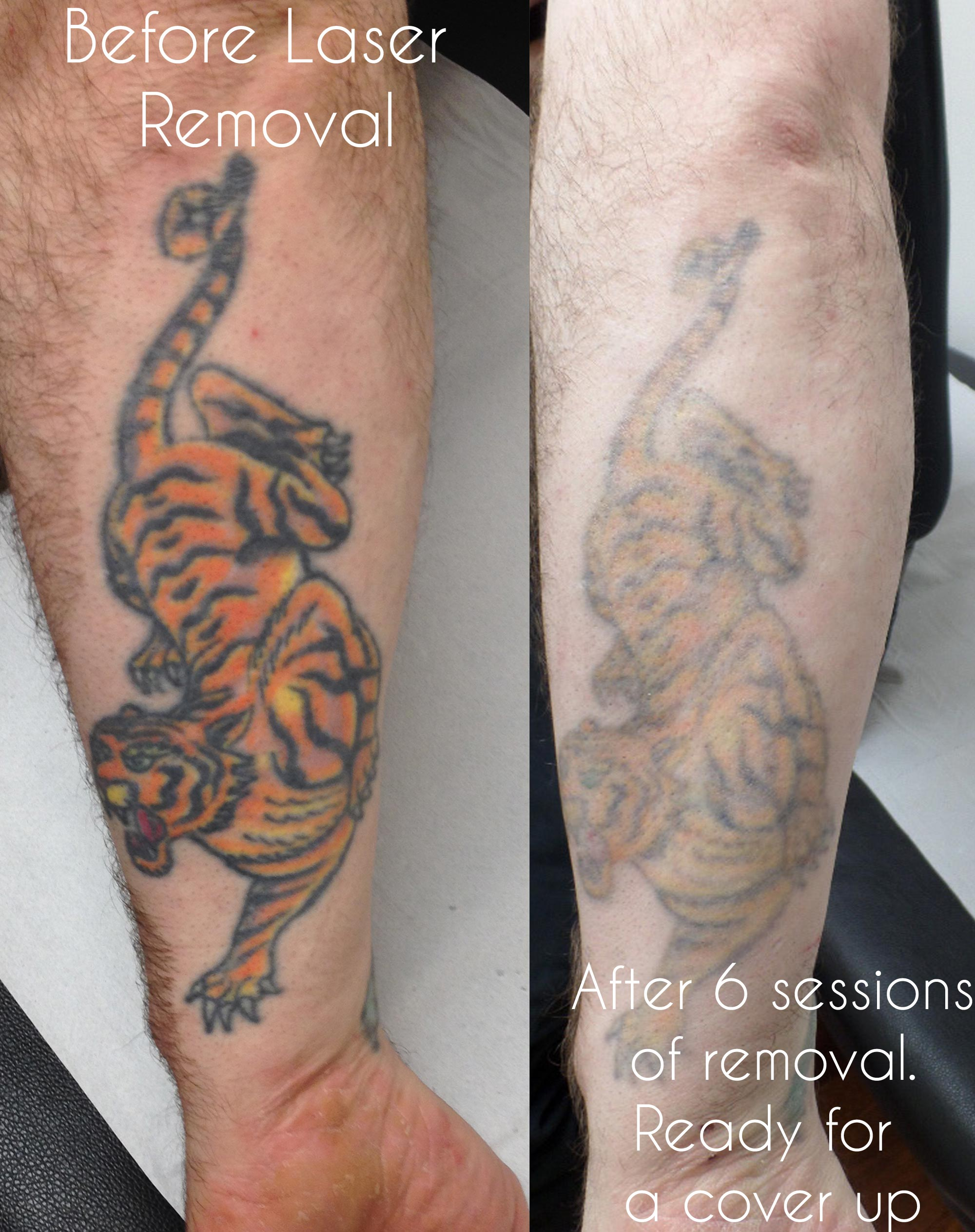 Laser tattoo removal - Birmingham UK.