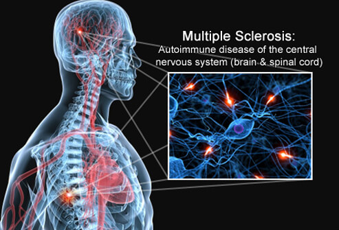 multiple-sclerosis-s1-brain-spinal-cord-nerves