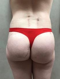 Post operative Plastic Surgery Trauma