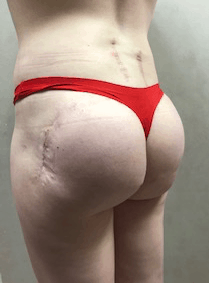 Post Operative Plastic Surgery Trauma Left