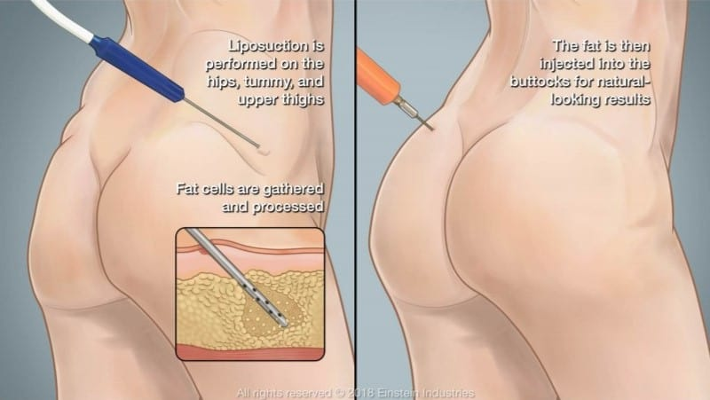 Controversial BBL surgery