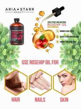 rose hip oil