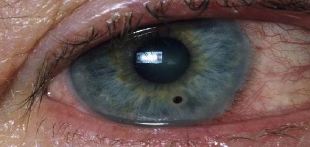 ظهور نقطة سوداء في العين موضوع