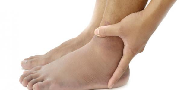 نتيجة بحث الصور عن أفضل علاج للأملاح الناتج عنه الم وتورم في القدمين