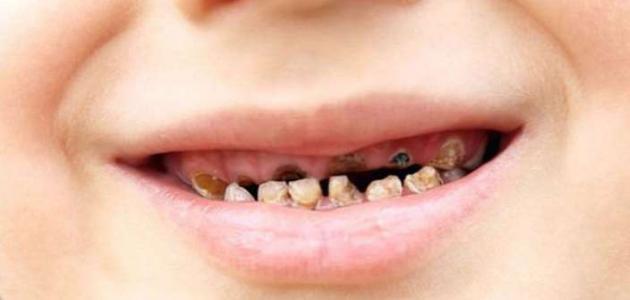 كيف يحدث تسوس الأسنان موضوع