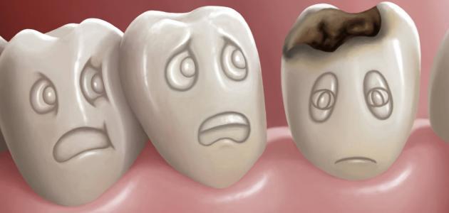 علاج تسوس الأسنان في المنزل موضوع