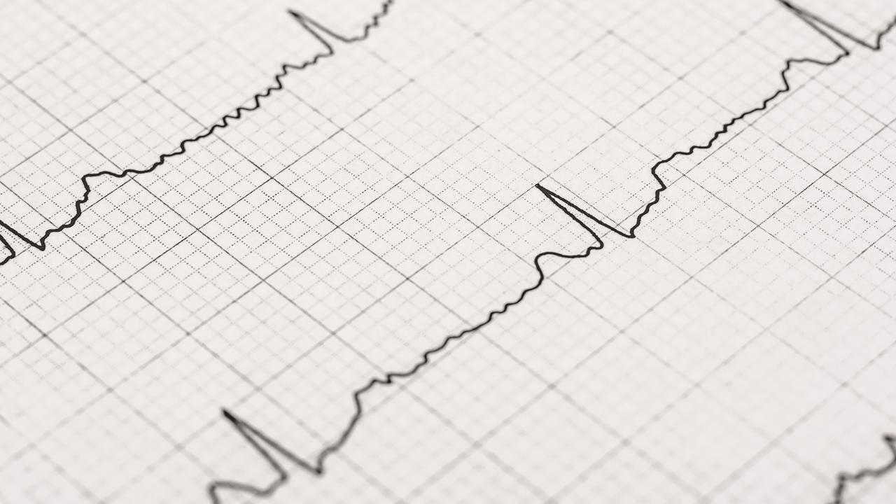 EKG podczas Anginy