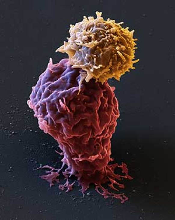 leukemia cancer cell being attacked by CAR T-cells