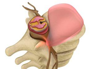 Почему болит шея с левой стороны. Болит шея с левой стороны – симптомы, возможные причины и профилактика