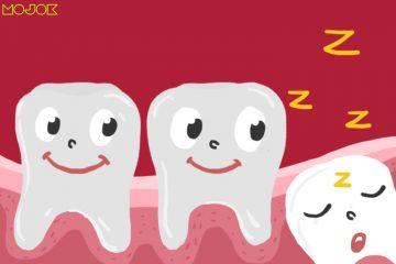 impaksi gigi geraham bungsu geraham dewasa infeksi operasi gigi tumbuh tidak wajar obat nyeri impaksi rahang kecil infeksi gusi perikoronitis mojok.co