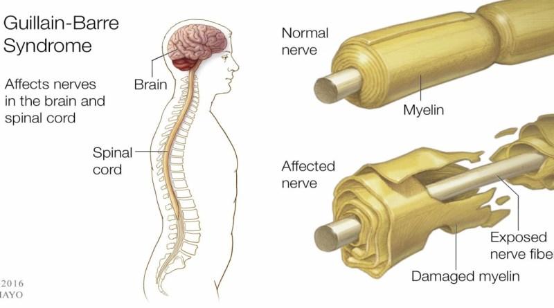Guıllaın-Barré Sendromu (GBS)
