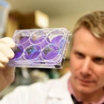 Araştırmacılar Kanser Hücrelerini Öldürmede Etkili Yeni İmmünoterapi Kombinasyonunu Keşfetti.