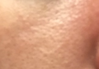 small-pores