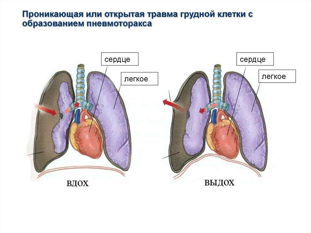 hipertenzija ir spazmalgonas teta apie hipertenziją