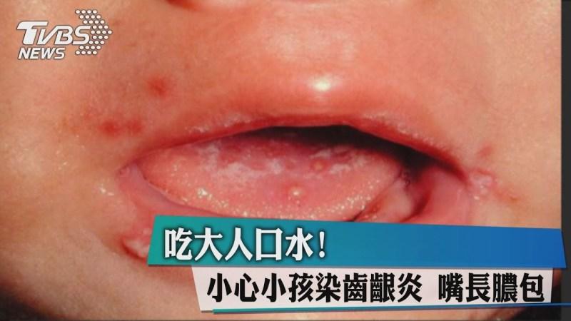 幼兒齒齦炎