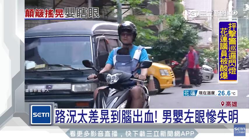 嬰兒搖晃症候群3歲前都要留心 父騎車用揹巾背男嬰造成失明