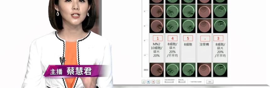 AI智能培養箱 試管嬰兒成功率大增
