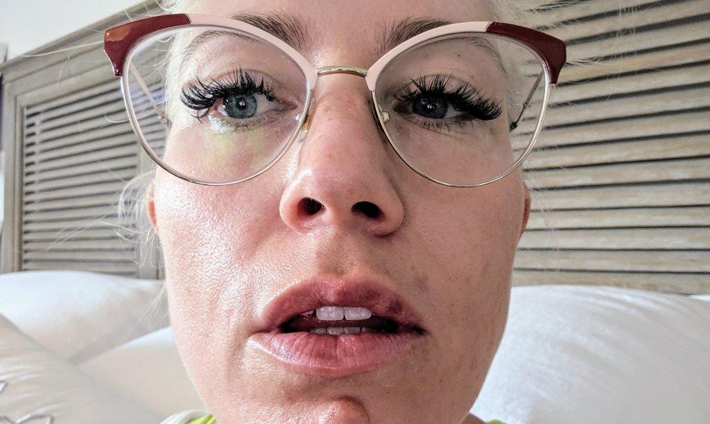 lip filler swelling