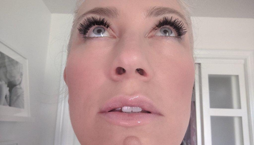 non-surgical lip filler