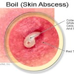 All about Boils or Pigsa