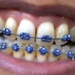 AT what age should your child see an orthodontist?