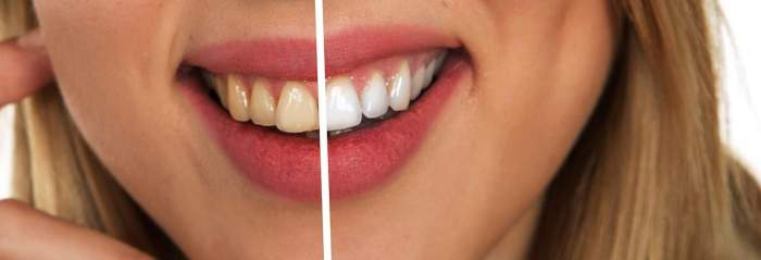 7 Great Advantages Of Laser Teeth Whitening
