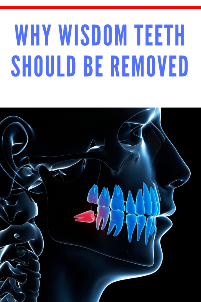 The problem with wisdom teeth is that they start growing when the rest of the teeth are fully established. As such, there is usually no adequate space left for them. Therefore, they try to invade the space occupied by the nearby teeth.