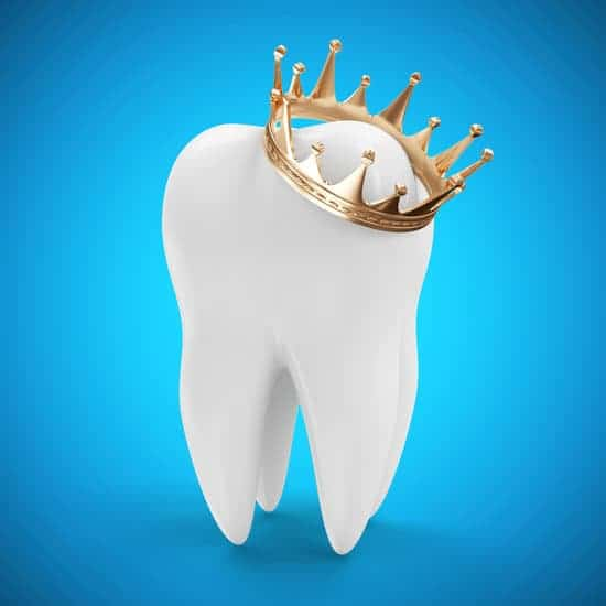 Other than the basic dental procedures such as wisdom tooth extractions or root canals, oftentimes, dental crowns are also needed.