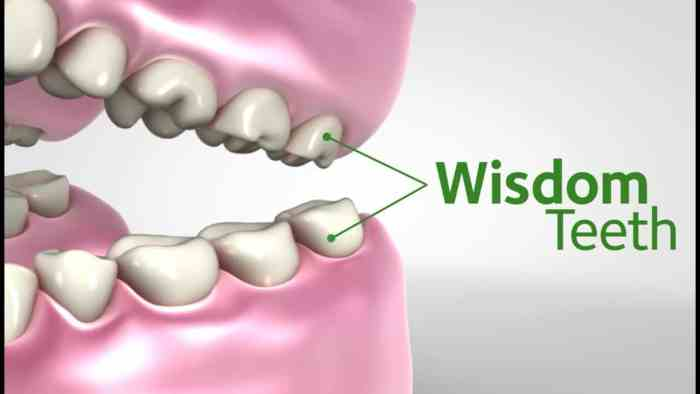 Wisdom teeth, also known as third molars, usually appear mid-teenage and mid-twenties. Here are the reasons you should have your wisdom teeth removed.