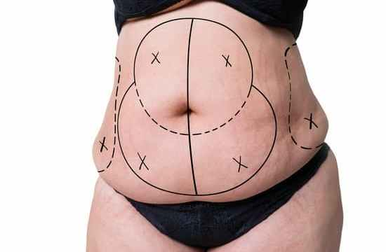 Each year, there are more than235,000 liposuction surgeries. If it's something you're considering, here are the pros and cons of liposuction.