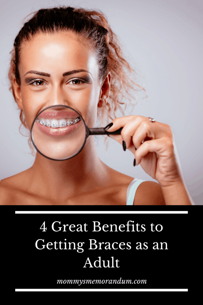 If you regret not fixing your teeth as a teenager, or if your treatment wasn't completely successful, you can have a second chance now by getting braces as an adult.