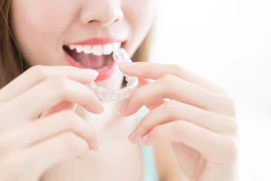 Amazing Advice To Help You Save When Looking For Invisalign For Teens